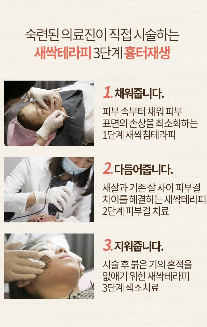 패인 여드름 흉터 치료!