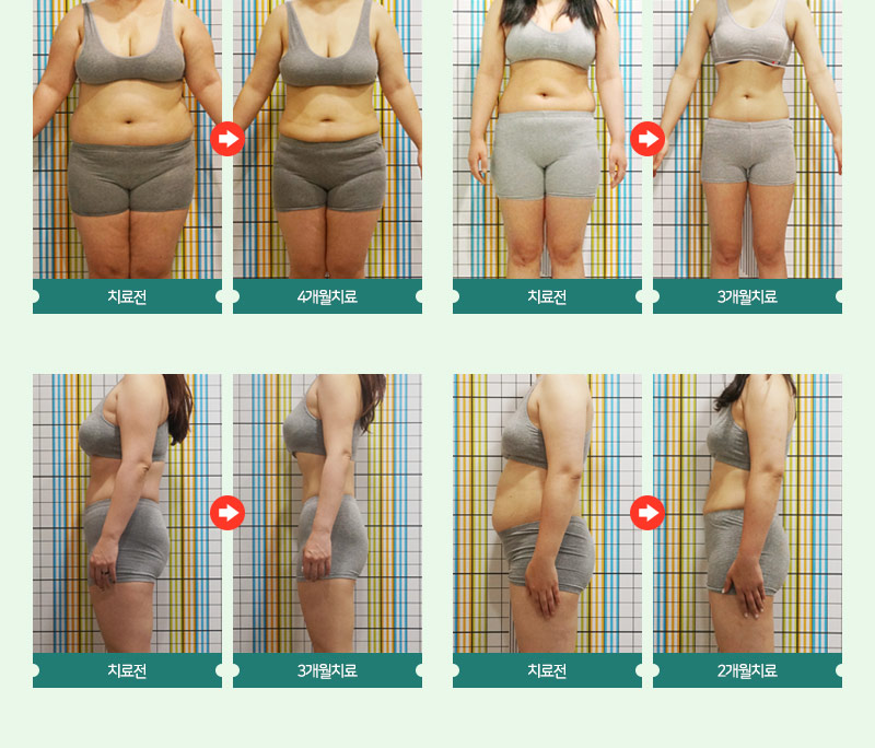 심쿵! 한방1주 다이어트!