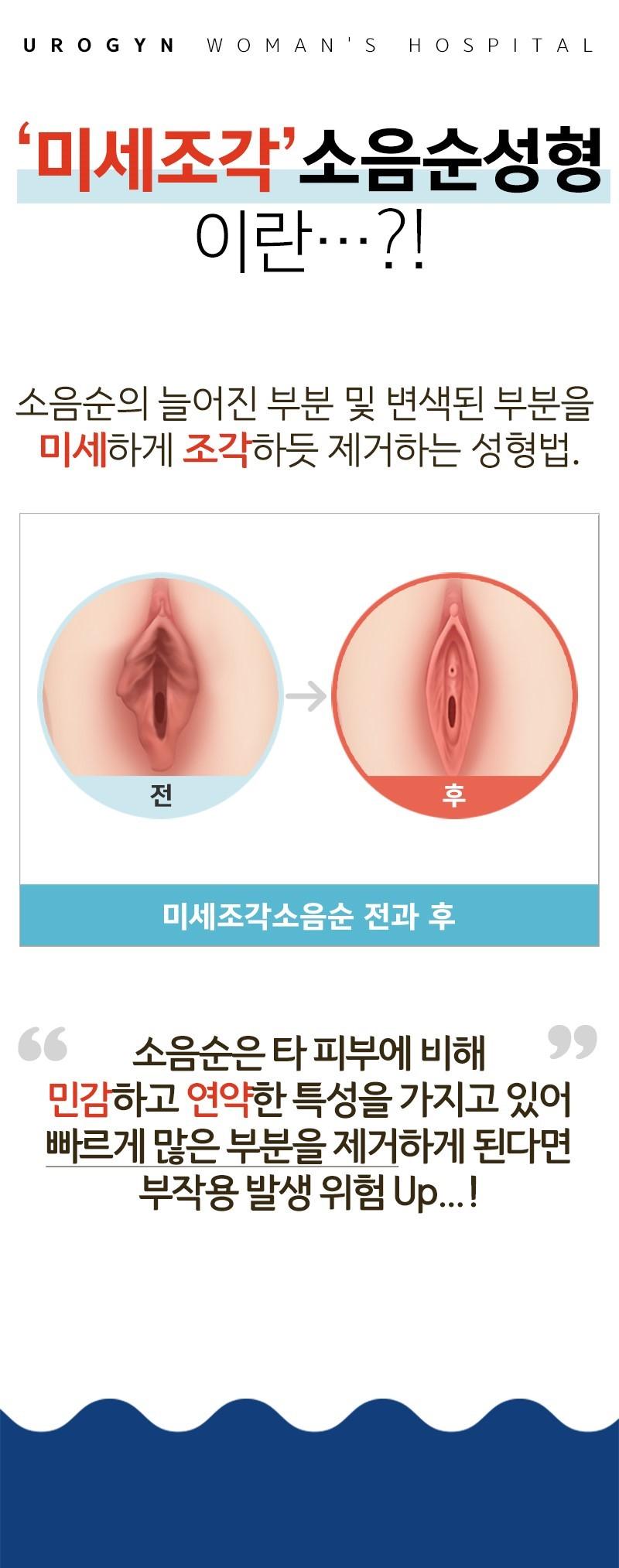 미세조각 소음순 성형수술!
