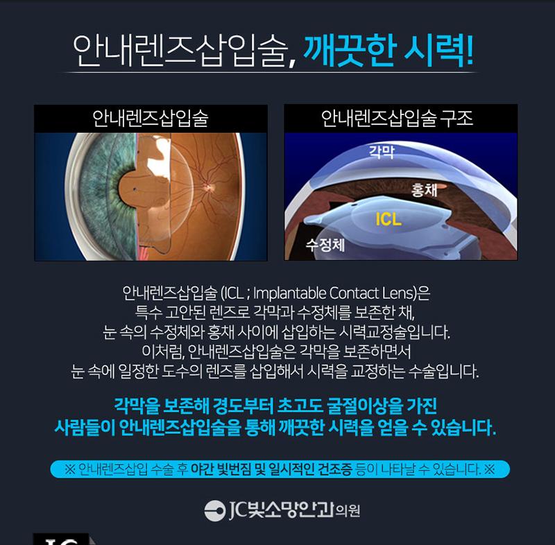 내 눈에 맞는 1:1 맞춤형 렌즈삽입술
