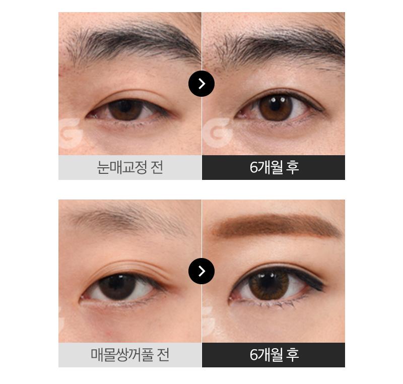 [오직똑닥] 흉터걱정없는 비절개 눈매교정+쌍꺼풀!