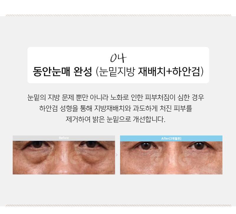 환한 얼굴 프로젝트 지원자 모집! -눈밑지방하안검