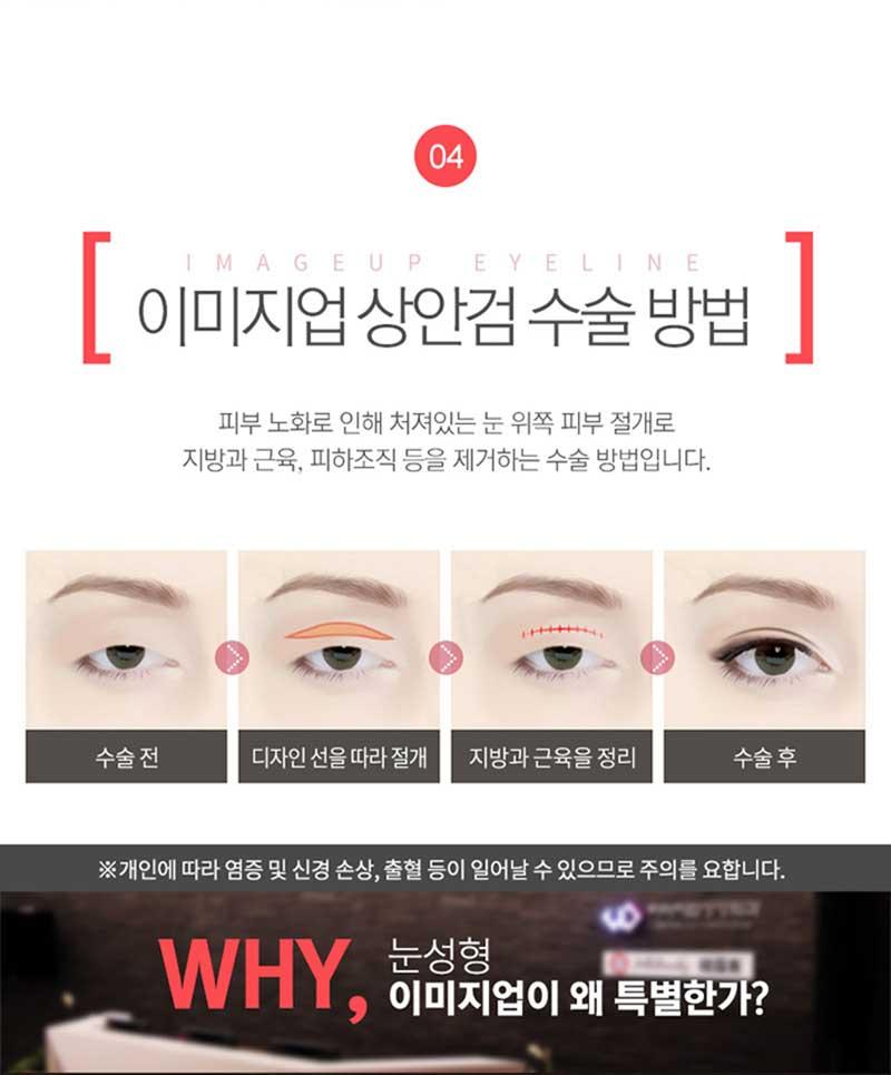 상안검 눈꺼풀수술