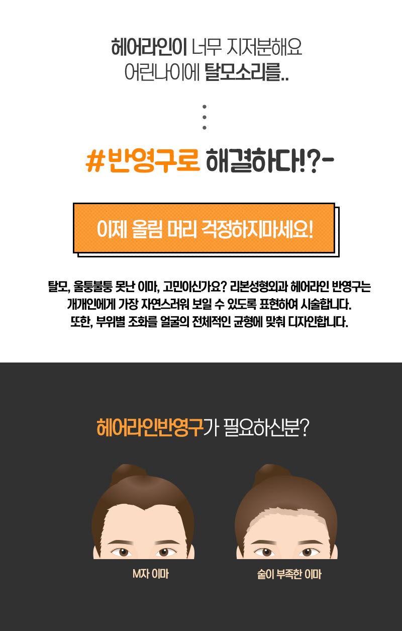 헤어라인 반영구!