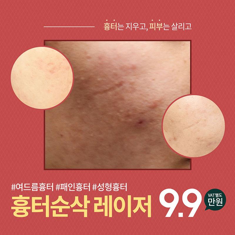 흉터 순삭 레이저
