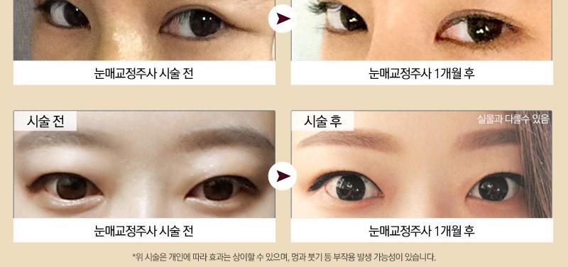 절개없이 주사로 눈매교정이 가능하다고? ♥눈매교정주사