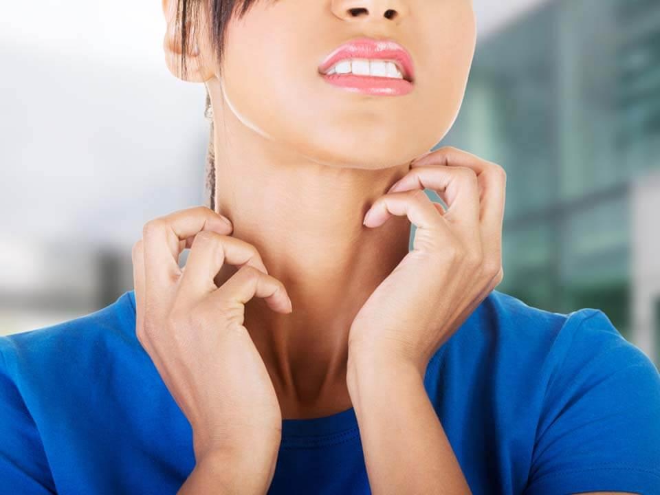 지루성피부염